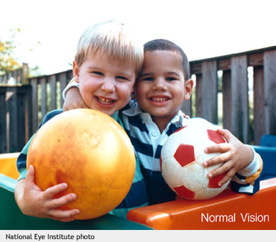 Normal Vision (NEI photo)