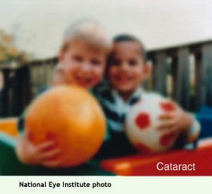 cataract (NEI photo)