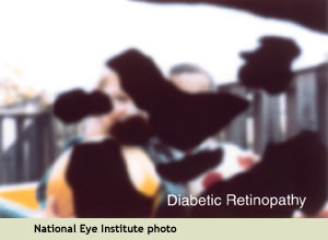 NEI example of seeing with diabetic retinopathy: many blind spots and overall blurriness