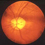 view of inner eye to check for glaucoma