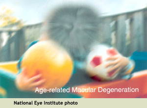 NEI image of how someone with macular degeneration sees: overall blurriness with a blind spot in the center