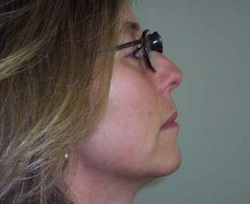 side view of woman with head tilted slightly up, wearing bioptic lens