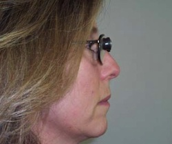 side view of woman wearing bioptic spectacles looking straight ahead, through the telescopic view