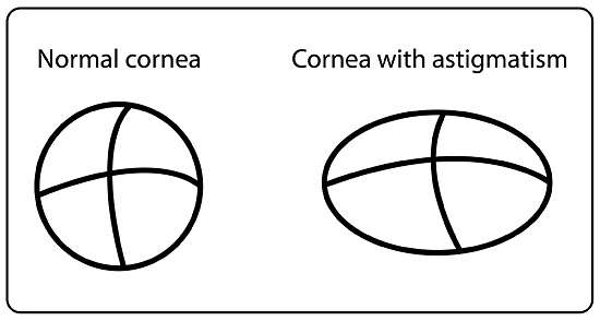 diagram showing the shape of a normal cornea, and the elongated, football-shaped cornea of someone with astigmatism