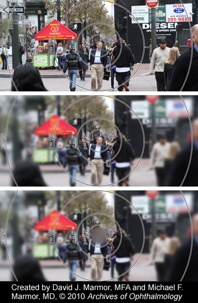 street scene: top image shows the photo a camera would take (entirely focused); the middle image shows what someone with full vision would see (as we see clearly only in the very center of our vision, what we are looking directly at); and the bottom image shows how someone with vision loss from AMD would see it, with a blurry spot in the middle