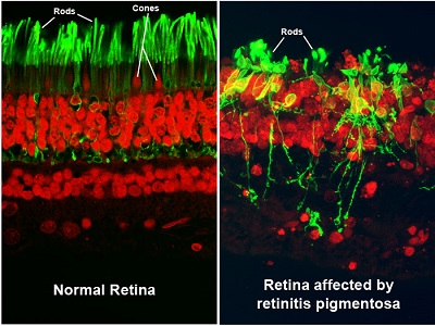 These images show a section of retina tissue from the back of the eye, as seen through a high-resolution microscope. The left image illustrates a normal retina, while the right image shows a retina affected by a condition called retinitis pigmentosa (RP).