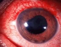 an eye with anterior uveitis