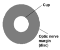 A graphic representation of the cup and disc of the optic nerve head. Source: Author