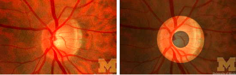 The normal optic disc is shaped like a donut. Source: University of Michigan College Eye Center