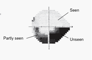 Map of visual field deficits. Source: Author