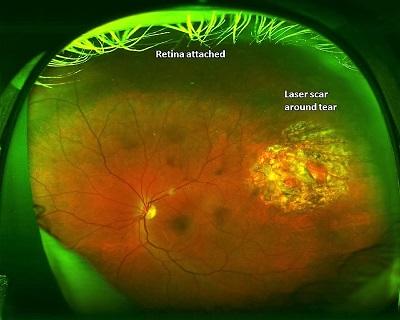 retinal detachment after treatment
