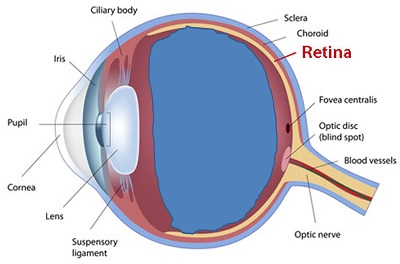 view of the eye with posterior vitreous detachment