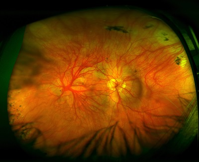 a fundus showing albinism