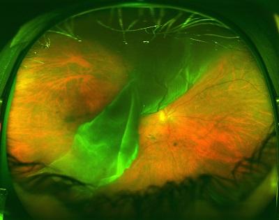 a giant retinal tear with retinal detachment before treatment