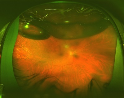 a giant retinal tear after replacement with a scleral buckle and gas