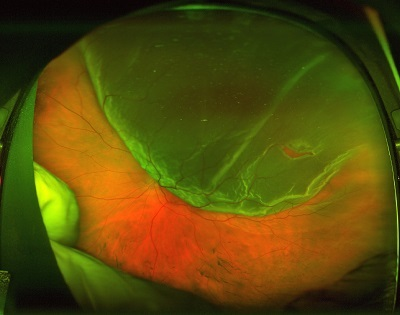 retinal detachment before treatment