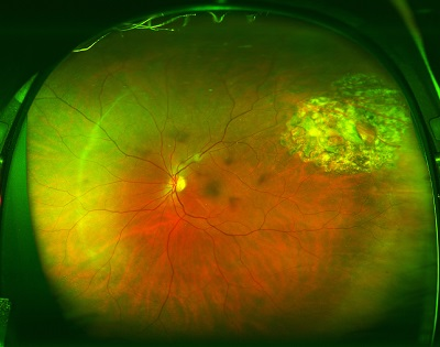 retinal attachment after gas bubble is gone